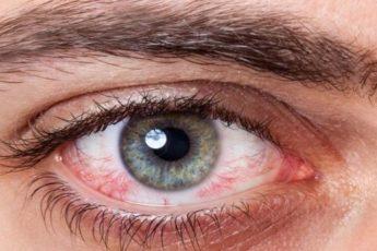 Избавьтесь от размытого зрения, жжения глаз и улучшайте зрение с помощью простого домашнего рецепта 1